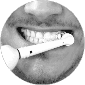 South Calgary Teeth Cleaning and Checkups | CU Smile Dental Care