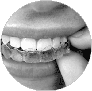 South Calgary Invisalign | CU Smile Dental Care